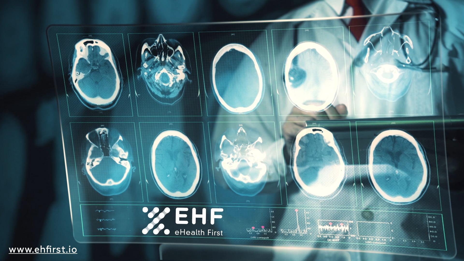 eHealth Reshapes International Healthcare with Blockchain, AI and NLP | NewsBTC