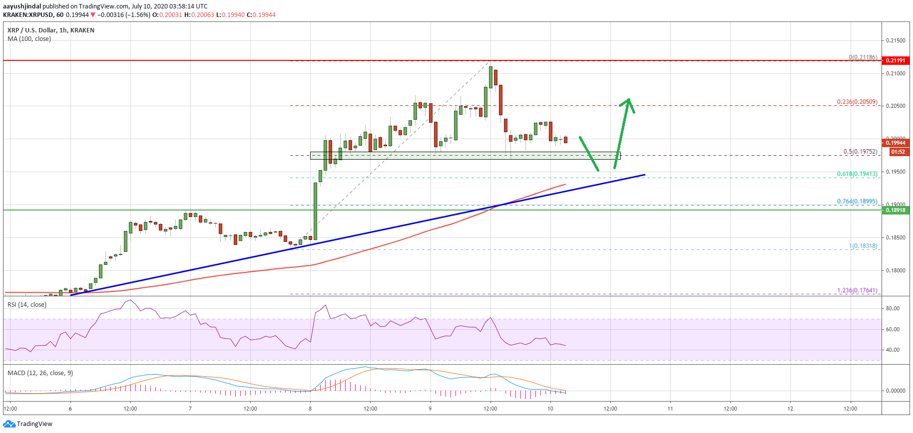 Ripple (XRP) Takes A Small Hit: Here's Why 100 SMA Holds The Key