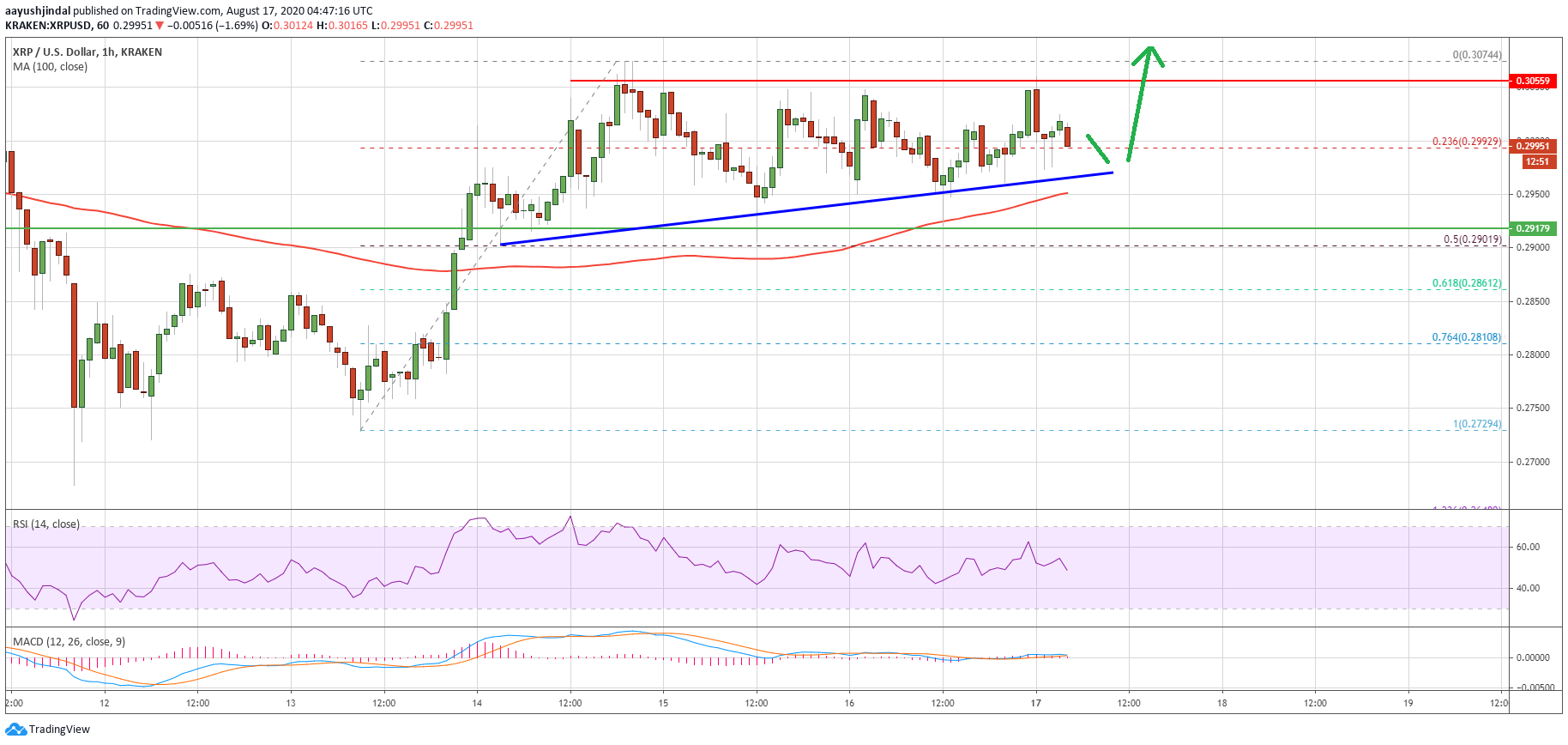 Ripple (XRP) Price Holds Strong at $0.30: A Strengthening Case for Upside
