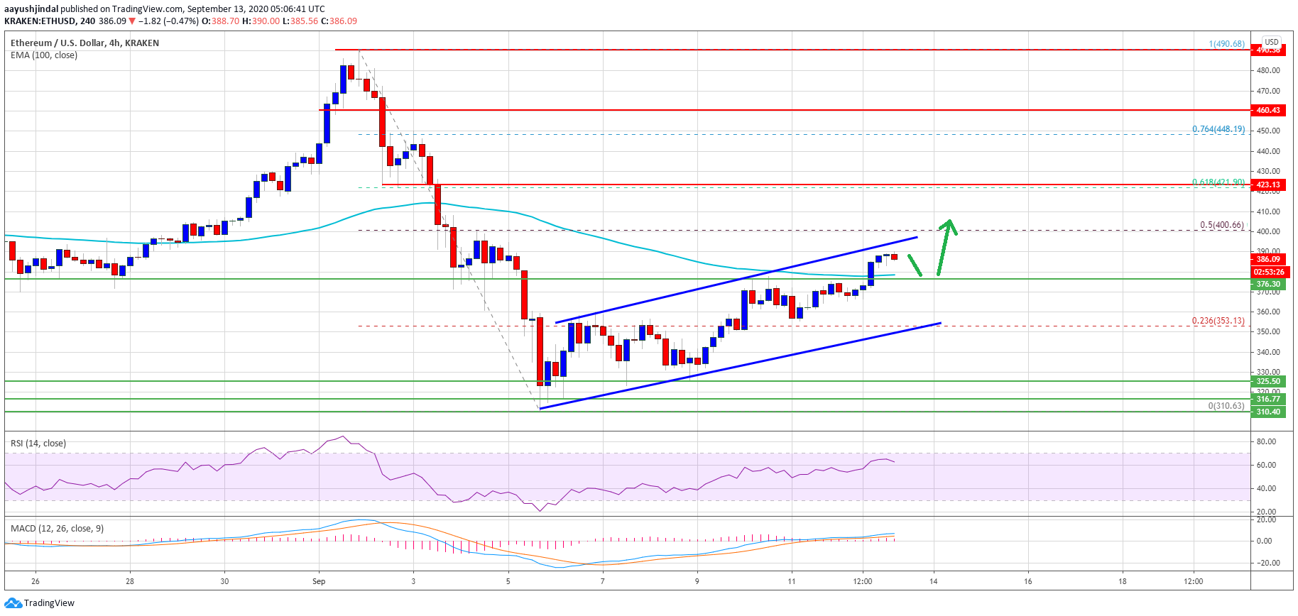 Ethereum Breaks Crucial Resistance, Technical Suggest More Upsides Above $400