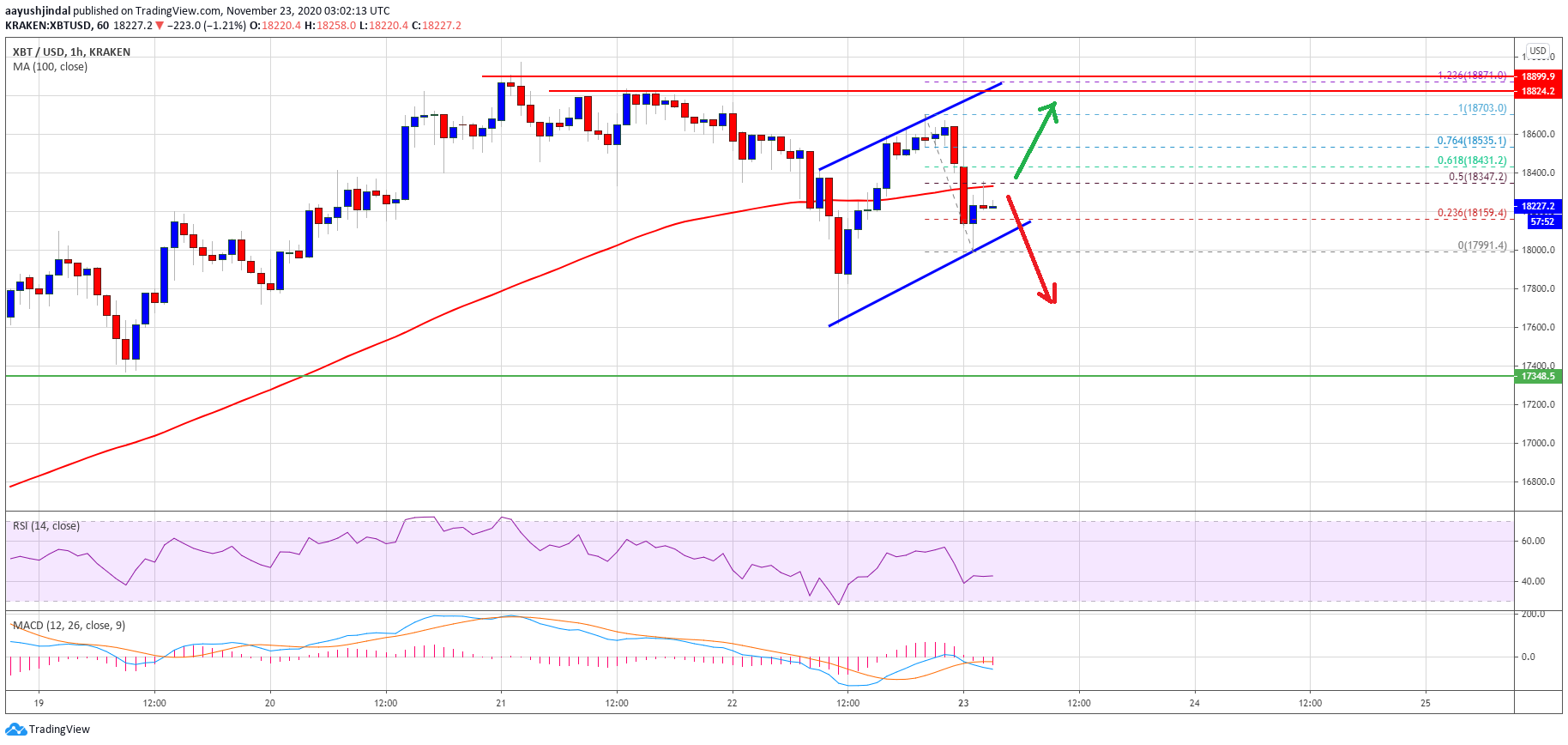 TA: Bitcoin Trades Below 100 SMA, Why BTC Could Face Short-term Dips
