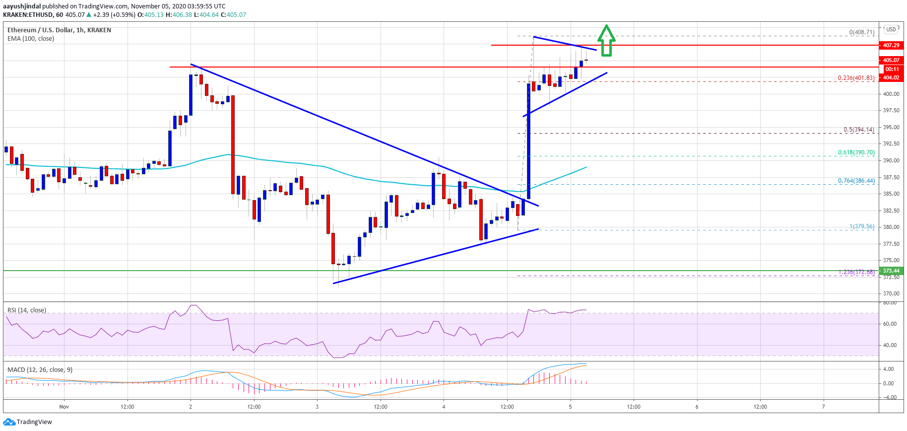 TA: Ethereum Prints Bullish Breakout, A Strengthening Case For $425