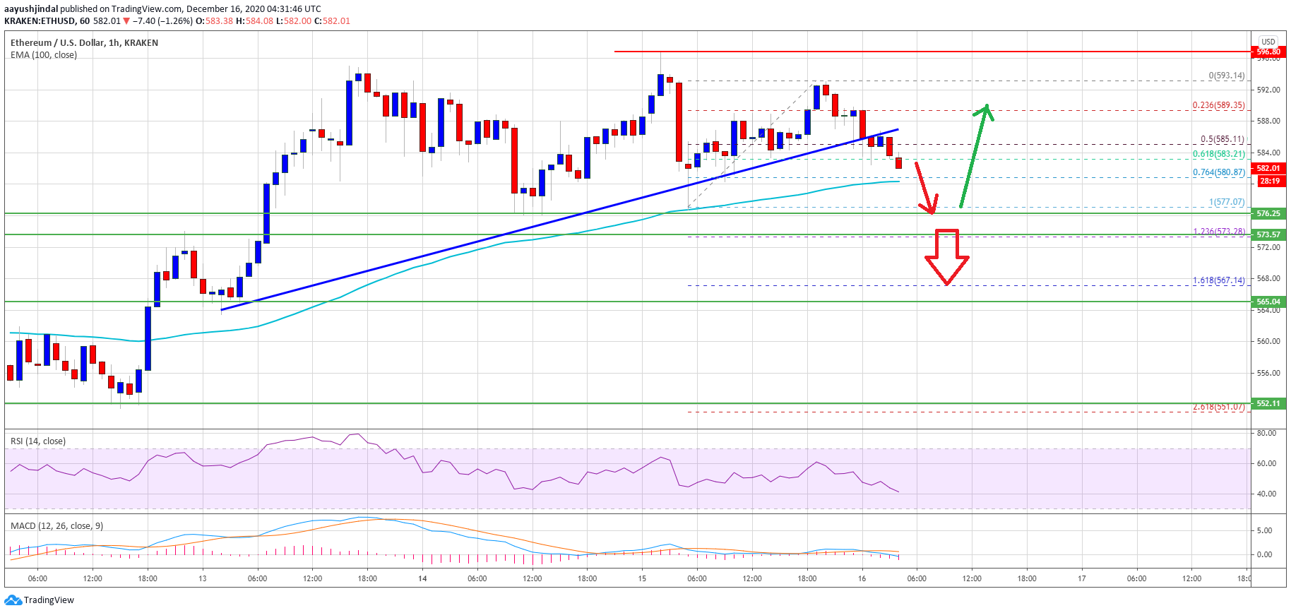 TA: Ethereum Bears Keeps Fighting, Why ETH Could Correct Sharply