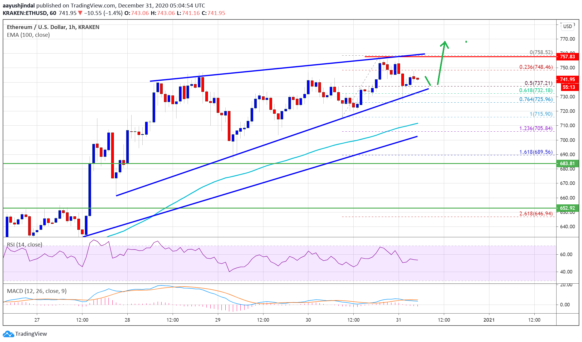 TA: Ethereum Prints Bullish Pattern, Why ETH Looks Set To Clear $750