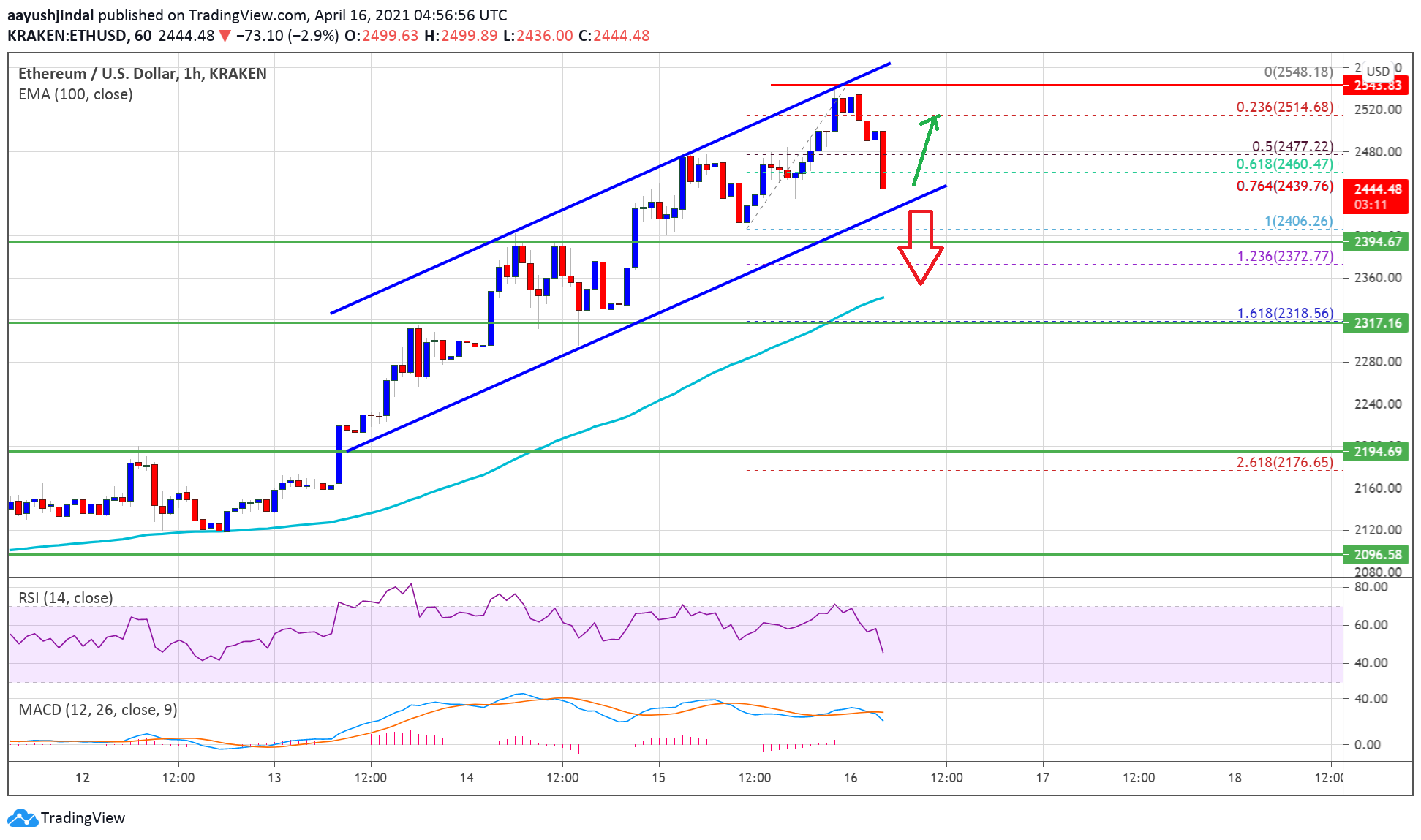 TA: Ethereum Corrects Rally, But 100 SMA Could Spark Fresh Increase
