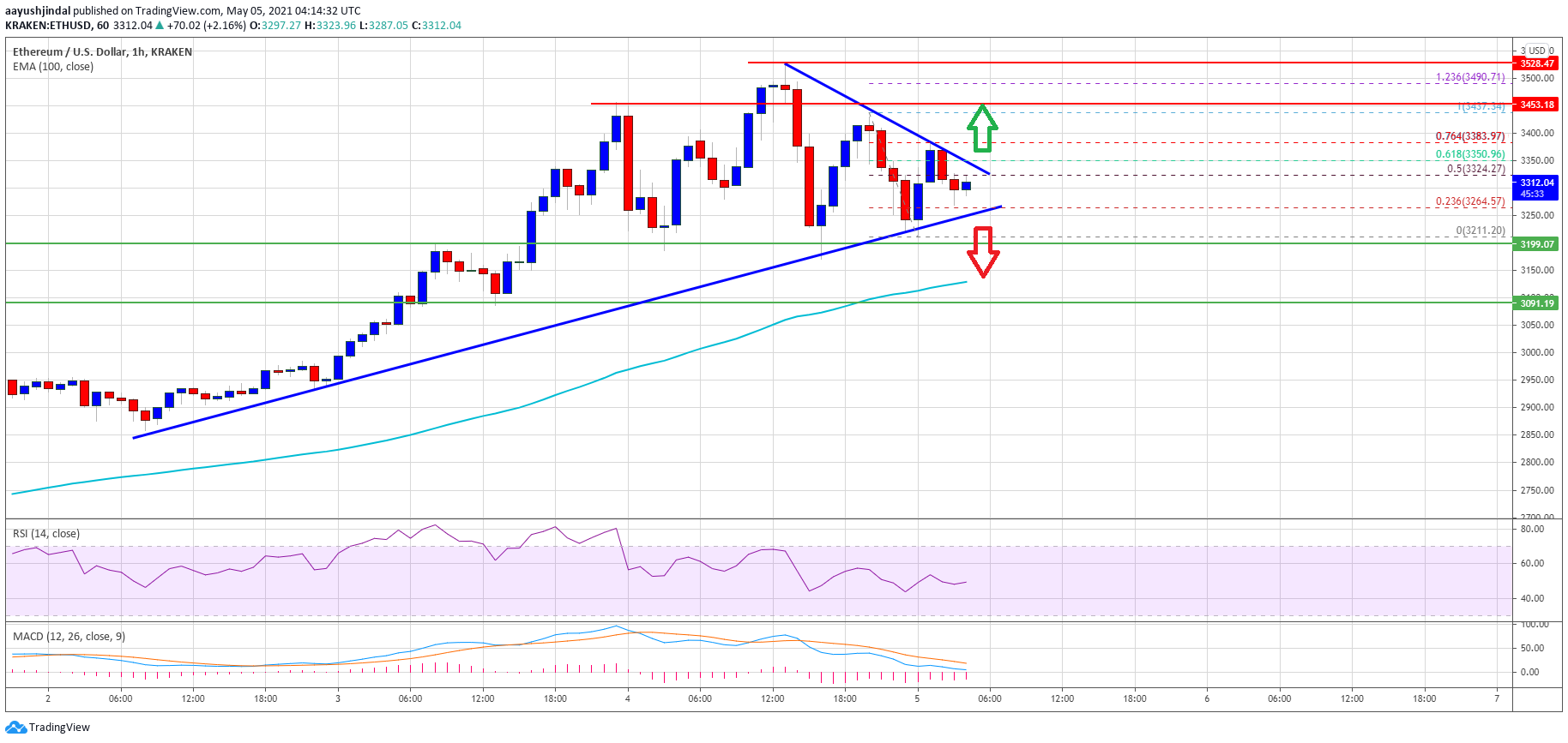TA: Ethereum Corrects Gains, Here's What Could Trigger Fresh Rally