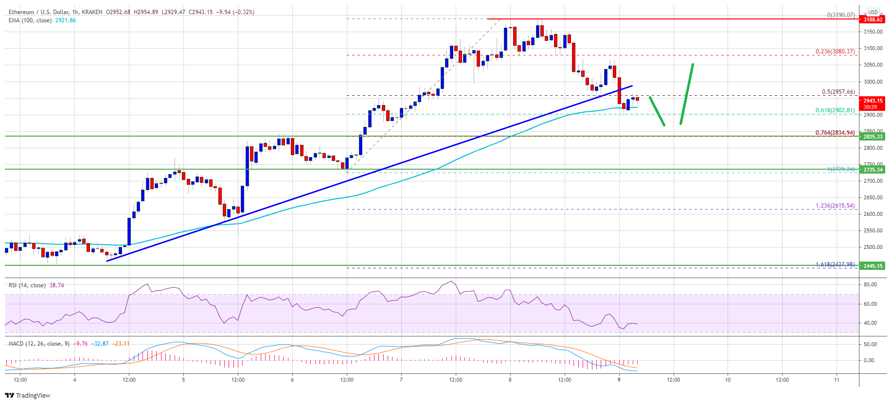 TA: Ethereum (ETH) Back Below $3K, Why Rally Isn't Over Yet
